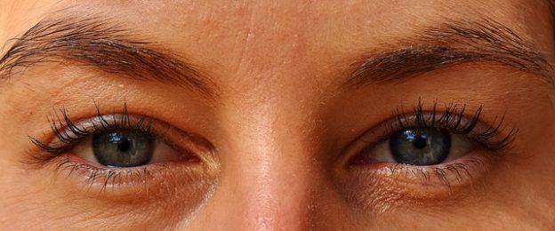 Eye EMDR